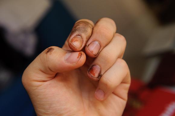 Coulures de nitrate d'argent sur les doigts. Les traces restent une semaine.
